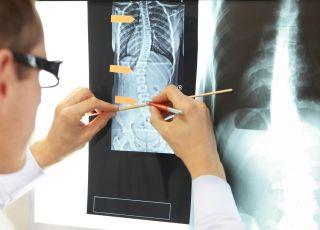 operacja skoliozy
