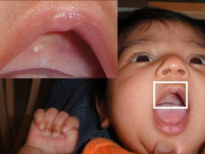 perły Epsteina, perły zębowe u noworodka