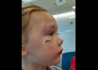 pobita dziewczynka z raną na policzku