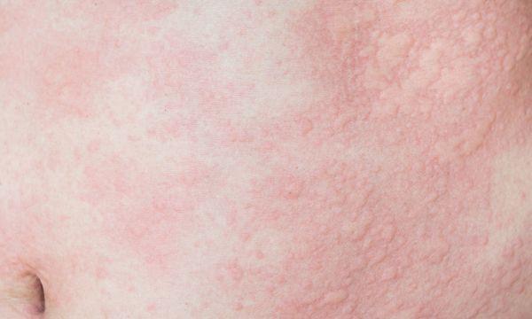 pokrzywka u dziecka wirusowa i bakteryjna zdjęcie