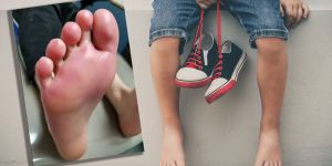Poparzone stopy