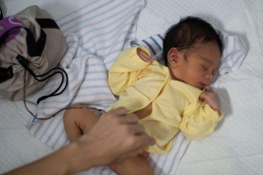 poród lotosowy dziecko z łożyskiem w woreczku