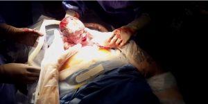Poród przez cesarskie cięcie na filmie