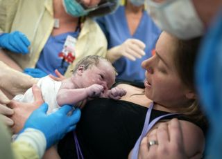 poród ułożenie stópkowe