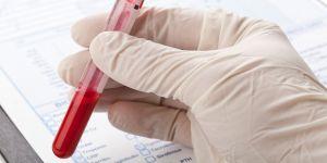 Probówka w krwią; wyniki badań krwi