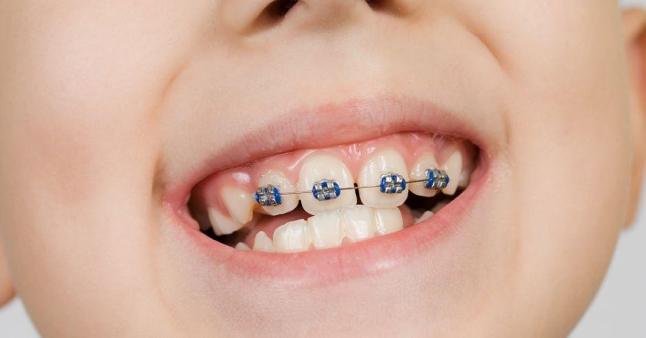 Sposoby Na Proste Zabki Cwiczenia I Profilaktyka By Uniknac Aparatu Ortodontycznego Mamotoja Pl