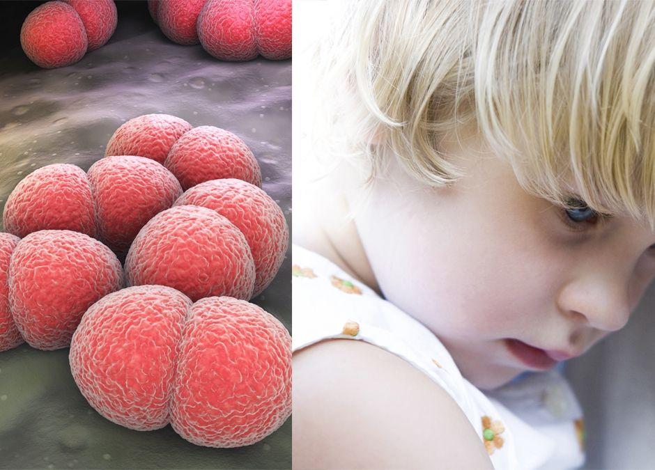 przedszkolanka zmarła przez meningokoki jak się chronić