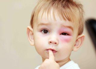 Niewinne użądlenie może skończyć się śmiercią - ostrzega dr Joanna Lange, alergolog z WUM