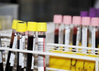 RDW w morfologii krwi