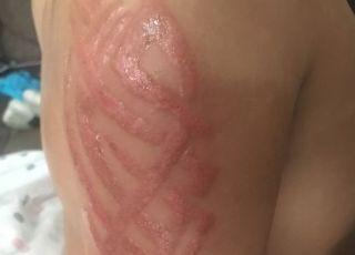 Reakcja alergiczna po tatuażu z henny