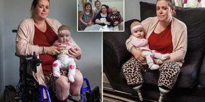 Rodziła, amputowano jej nogi w wyniku komplilacji przy porodzie