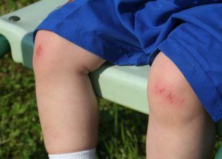 rozbite, kolano, pierwsza, pomoc, dziecko
