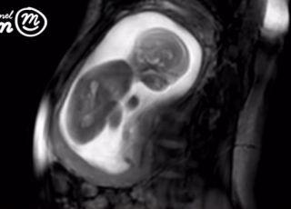 Ruchy dziecka w brzuchu mamy na filmie