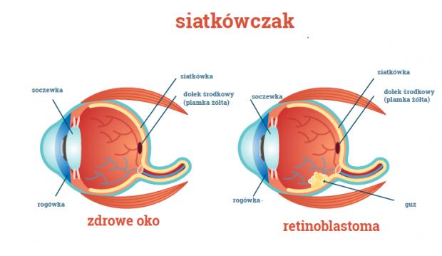zdrowe oko i oko z siatkówczakiem infografika