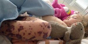 Skutki braku szczepień meningokoki B