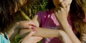 ugryzienie, ukąszenie, dziecko, ręka