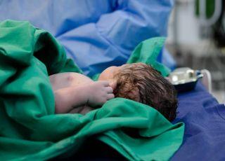 Wrocławscy lekarze wykonali cesarskie cięcie na kobiecie w śpiączce chorej na COVID-19