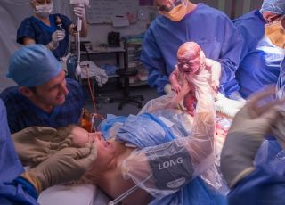 Wyjęcie dziecka z brzucha mamy - cesarskie cięcie
