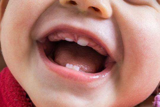 objawy ząbkowania: pierwsze ząbki