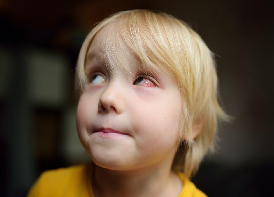 Zaczerwienione oko u dziecko