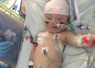 Zapalenie opon mózgowych u dziecka