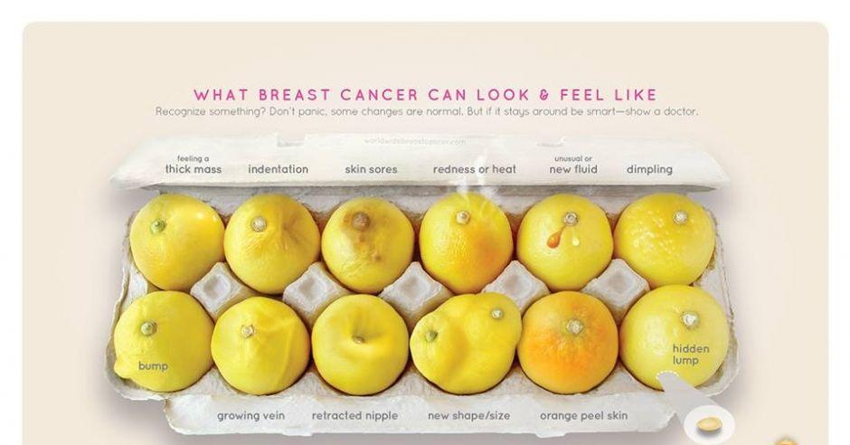 Zdjęcie kampanii Know Your Lemons informującej o raku piersi