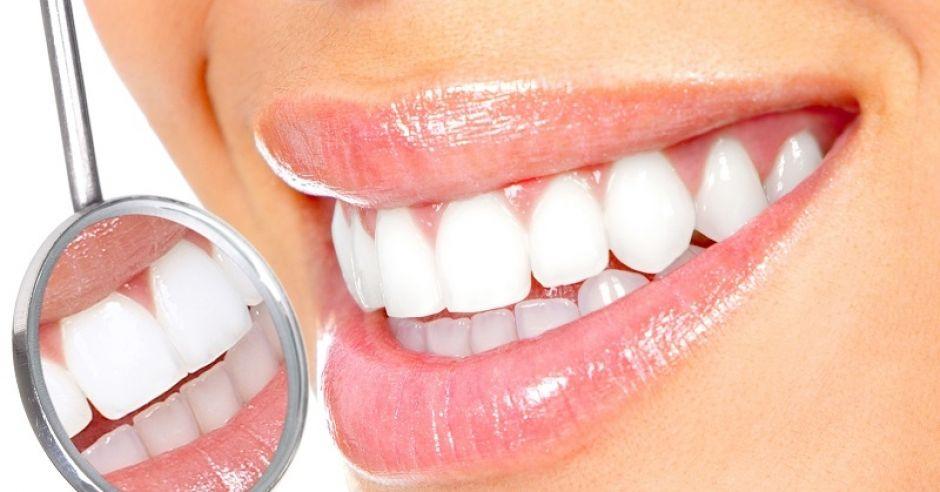 zęby, jama ustna, uśmiech