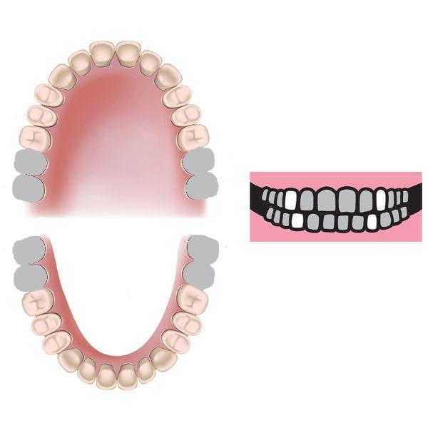 zęby mleczne, zęby stałe, kalendarz wzrostu zebów stałych