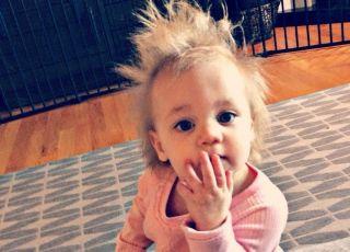 Włosy tej dziewczynki nie są naelektryzowane! To rzadka choroba